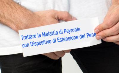Trattare la malattia di Peyronie con dispositivo di estensione del pene
