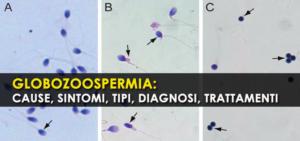 Globozoospermia: cause, sintomi, tipi, diagnosi, trattamenti