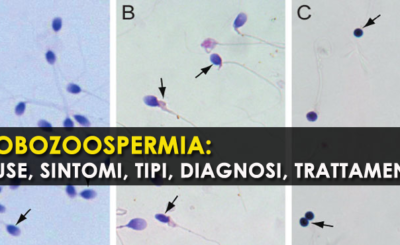 Globozoospermia