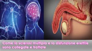 Come la sclerosi multipla e la disfunzione erettile sono collegate e trattate