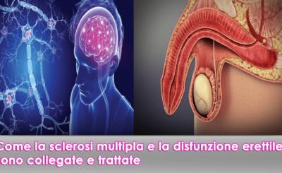 sclerosi multipla e la disfunzione erettile